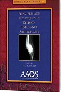 Download Principles and Techniques in Revision Total Knee Arthroplasty (Monograph) (Monograph Series (American Academy of Orthopaedic Surgeons)) fb2